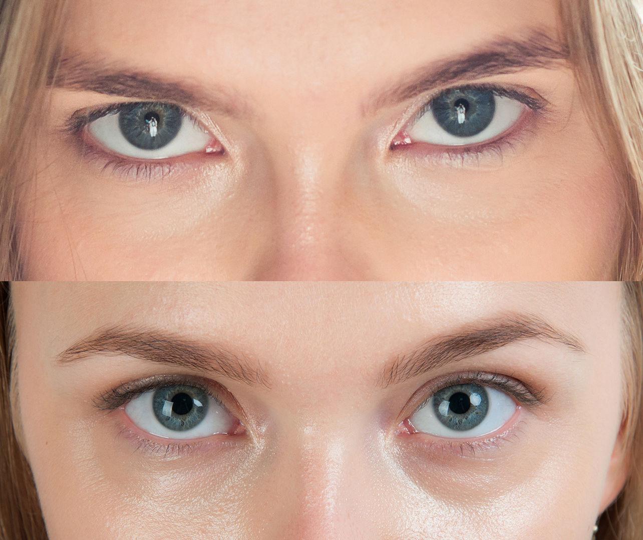 Рост ресниц фото до и после отзывы